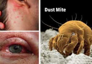 Grinje. Oboljenje i alergije